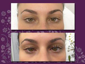 Augen mit gelifteten Wimpern
